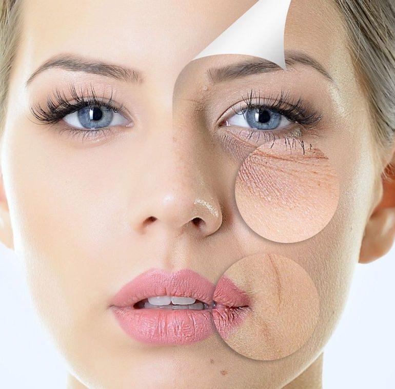 Remodelare faciala cu acid hialuronic